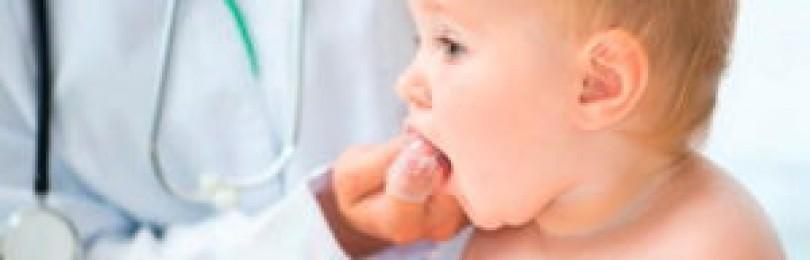 Дентинокс — инструкция по применению, отзывы, аналоги и формы выпуска (гель, мазь или крем, раствор или капли) лекарственного препарата для лечения боли и воспаления при прорезывании зубов у взрослых, детей и при беременности. состав