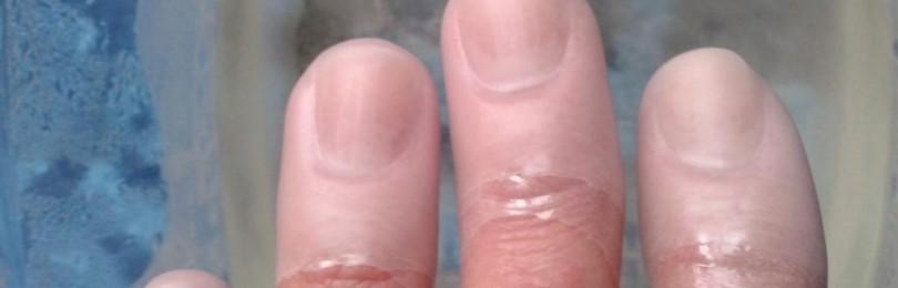 Признаки болезней по внешнему виду ногтя!!!