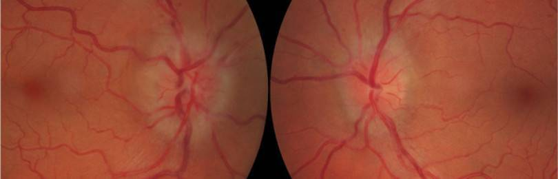 Все о воспалении зрительного нерва