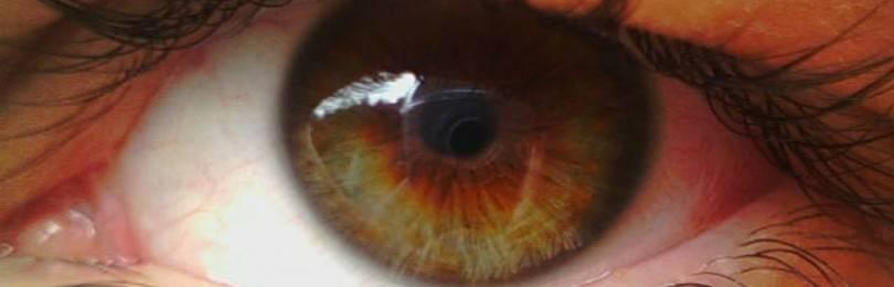 Народные средства для лечения отслойки сетчатки глаза