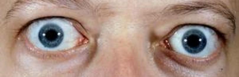 Особенности пучеглазия при базедовой болезни и методы его лечения