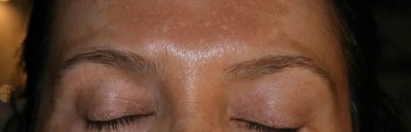 Пигментные пятна на лице при заболеваниях печени