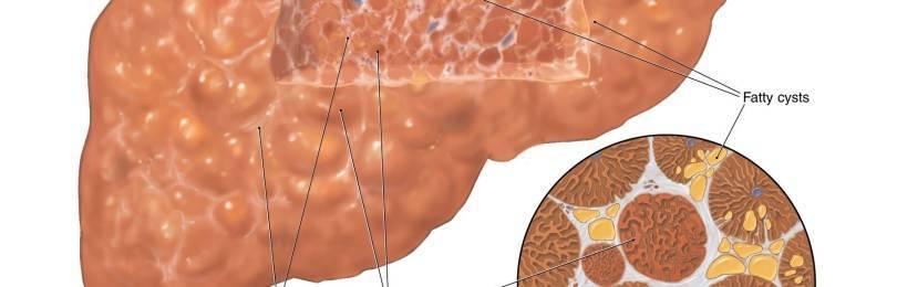 Что такое первичный и вторничный билиарный цирроз печени?