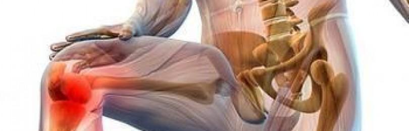 Применение средства артродарин для терапии остеоартроза