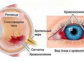 Кровоизлияние в глаз: что делать, причины и лечение, симптомы, диагностика