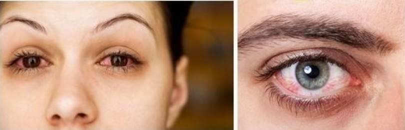 Как убрать cухость в глазах от линз