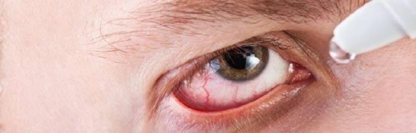 Кератит глаз: виды, профилактика и лечение, народные средства