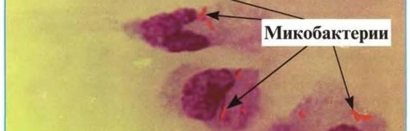 Показатели анализов мокроты при туберкулезе