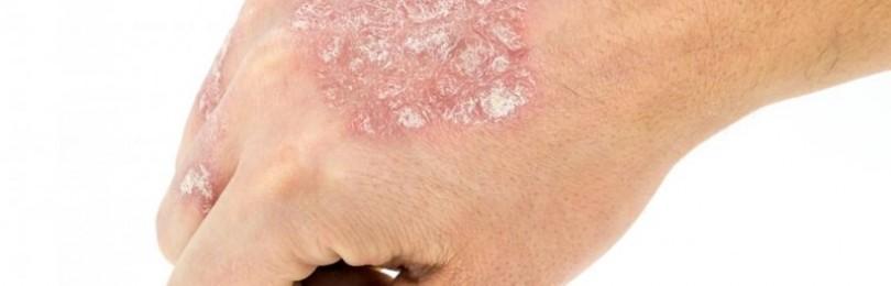 Чешуйчатый лишай у человека: симптомы, лечение, фото псориаза