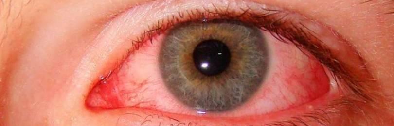 Глаз слезится и покраснел: причины, лечение, чем капать, что делать в домашних условиях (народные средства, капли)