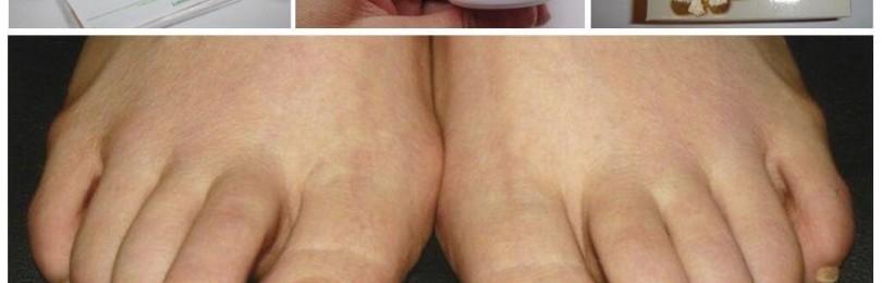 Крем ногтимицин 911 от грибка ногтей