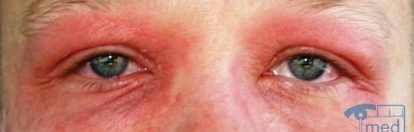 Причины аллергии на веках глаз