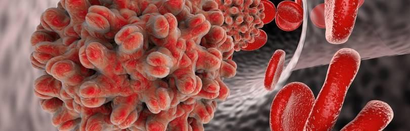 Гепатит B: симптомы и лечение, сколько живут с вирусом?