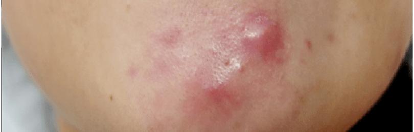 Сыпь на подбородке у женщин: причины и высыпания, способы лечения