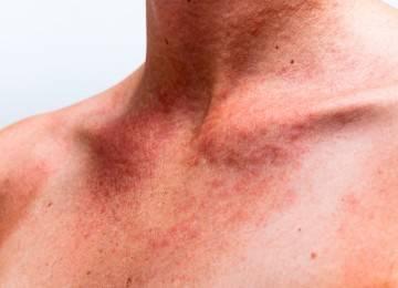Может ли быть аллергия при заболевании печени?