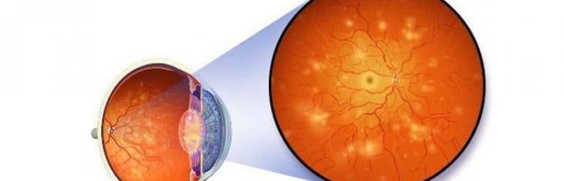 Ангиопатия сосудов сетчатки глаза: что это такое, у ребенка, у взрослого, симптомы, лечение