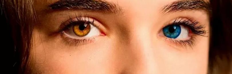 Гетерохромия глаз у людей. причины, лечение