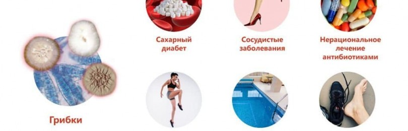 Грибковые заболевания кожи: фото, симптомы, названия видов микоза, методы лечения