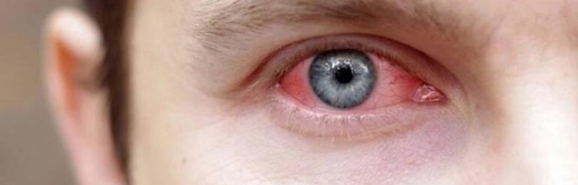 Заболевания сетчатки глаза: симптомы поражений, лечение патологий и дефектов народными средствами