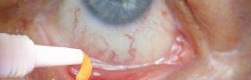 Топ 12 мазей от воспаления и покраснения глаз: обзор, цены, лечение