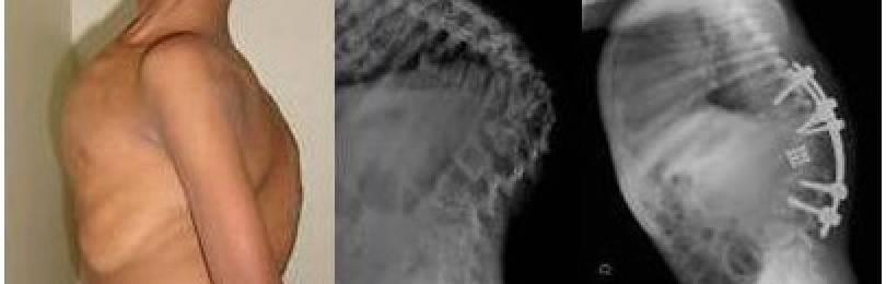 Туберкулез костей симптомы первые признаки как передается
