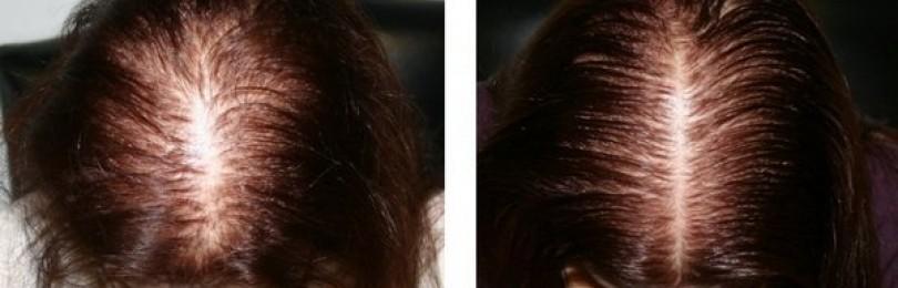 Лечение алопеции: когда выпадение волос превращается в болезнь?