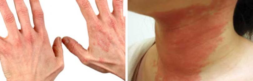 Аллергическая крапивница: причины, симптомы, лечение