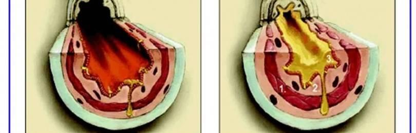 Астматический кашель чем отличается от обычного