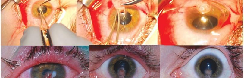 Возможности диагностики и лечения синдрома «сухого глаза» в россии