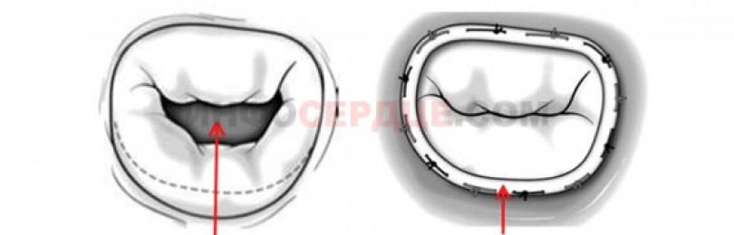 Клиническая эхокардиография