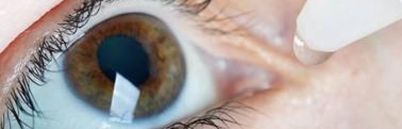Рекомендации врача по удалению катаракты: до и после операции