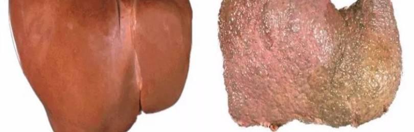 Что происходит с печенью при употреблении алкоголя?