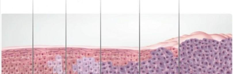 Заболевания шейки матки, лечение и профилактика