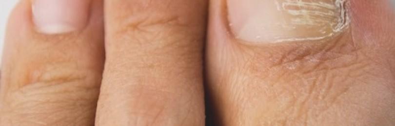 Грибок, болезни ногтей