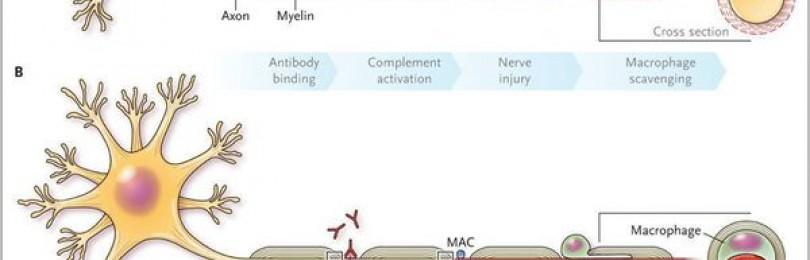 Синдром гийена-барре (острый полирадикулит). что такое синдром гийена барре и чем он опасен лфк у больных синдромом гийена барре