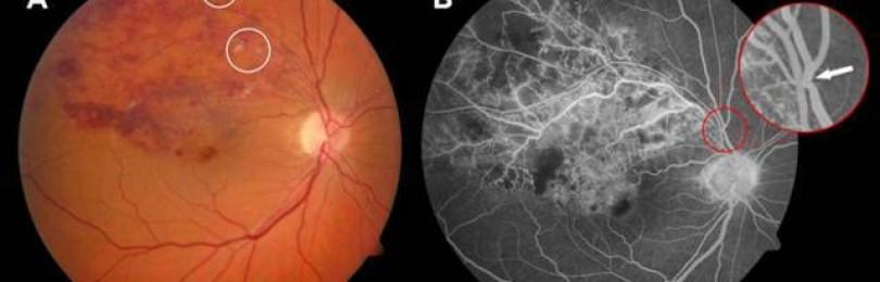 Народные средства лечения тромбоза центральной вены сетчатки глаза