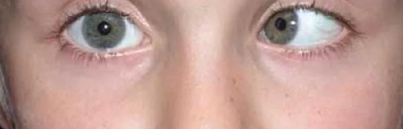 Нистагм глазного яблока: что это такое, причины возникновения и виды патологии, диагностика и лечение