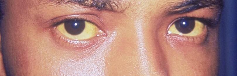 Что за болезнь Синдром Жильбера: диагностика, симптомы, лечение