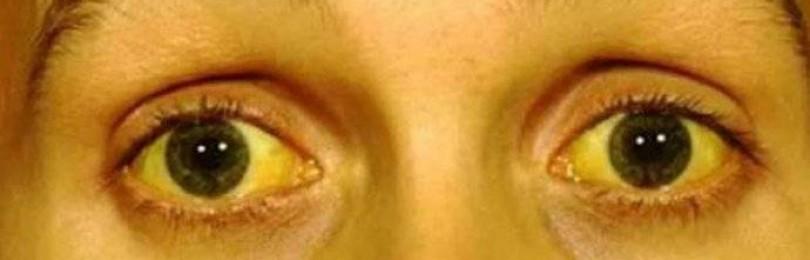 Желтые белки глаз: причины, лечение