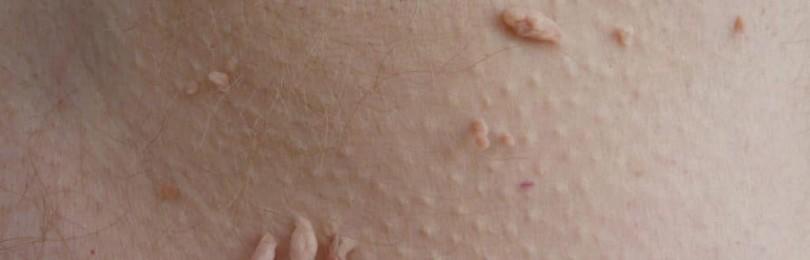 Разновидности бородавок причины их появления и методы лечения