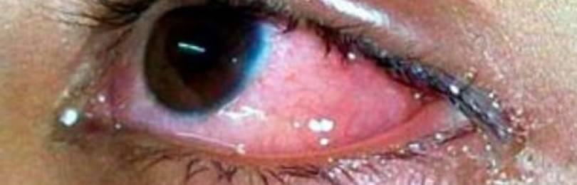 Капли для глаз увлажняющие при ношении линз