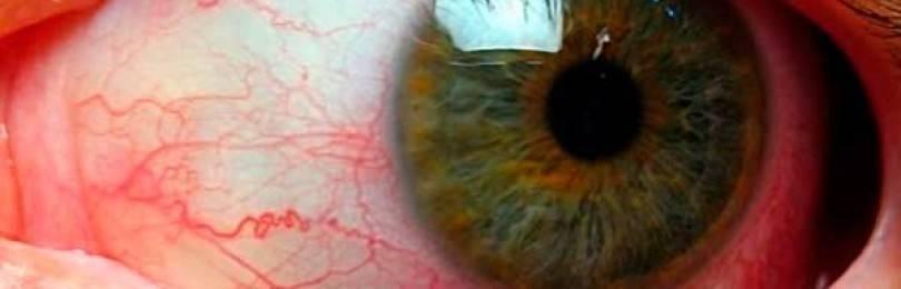 Клинический случай лечения неинфекционного хронического рецидивирующего увеита на фоне анкилозирующего спондилита