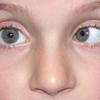 Нистагм: классификация, причины, симптомы и лечение