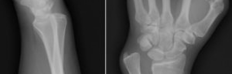 Перелом лучевой кости со смещением и без