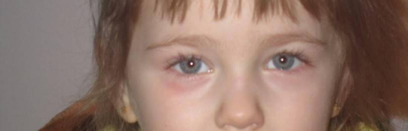 Красные нижние веки у ребенка