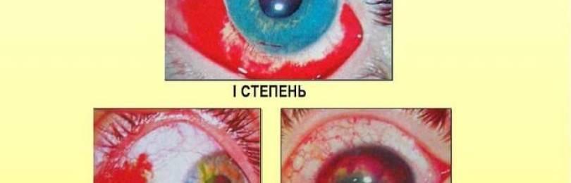 Глазные капли тауфон для глаз — инструкция по применению, для чего применяется детям, показания, таблетки, состав, как капать и сколько раз в день