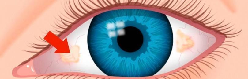 Пингвекула — лечение наростов на глазах