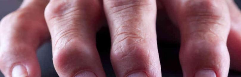 Отзывы о препарате плаквенил