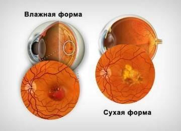 Макулодистрофия сетчатки глаза: лечение народными средствами в домашних условиях, влажная, возрастная, макулярная, прогноз, сухая