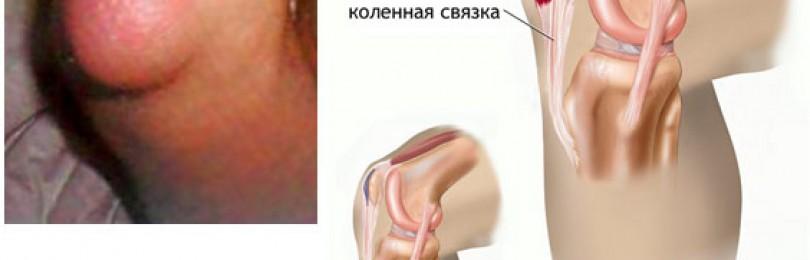 Гепатромбин гель при геморрое